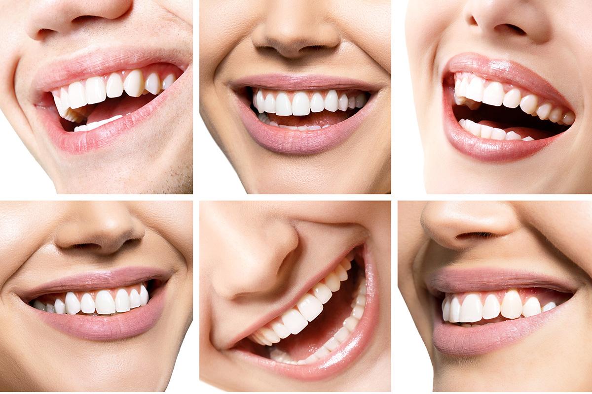 El arte de sonreír